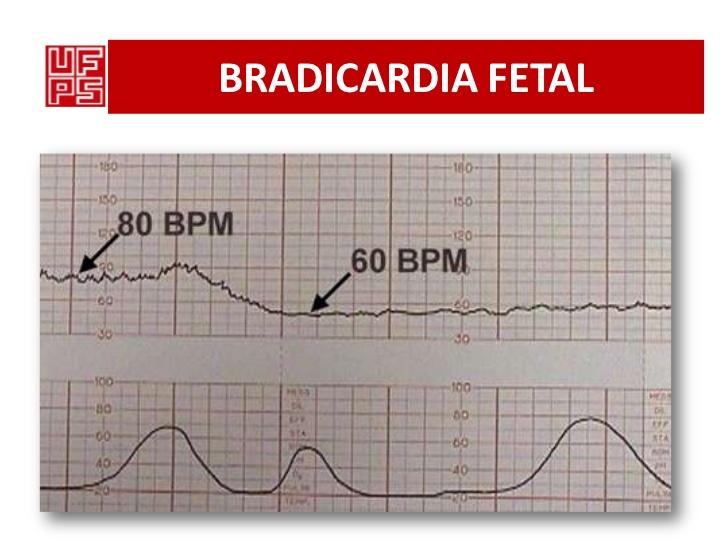 monitorizacion fetal. Bradicardia fetal