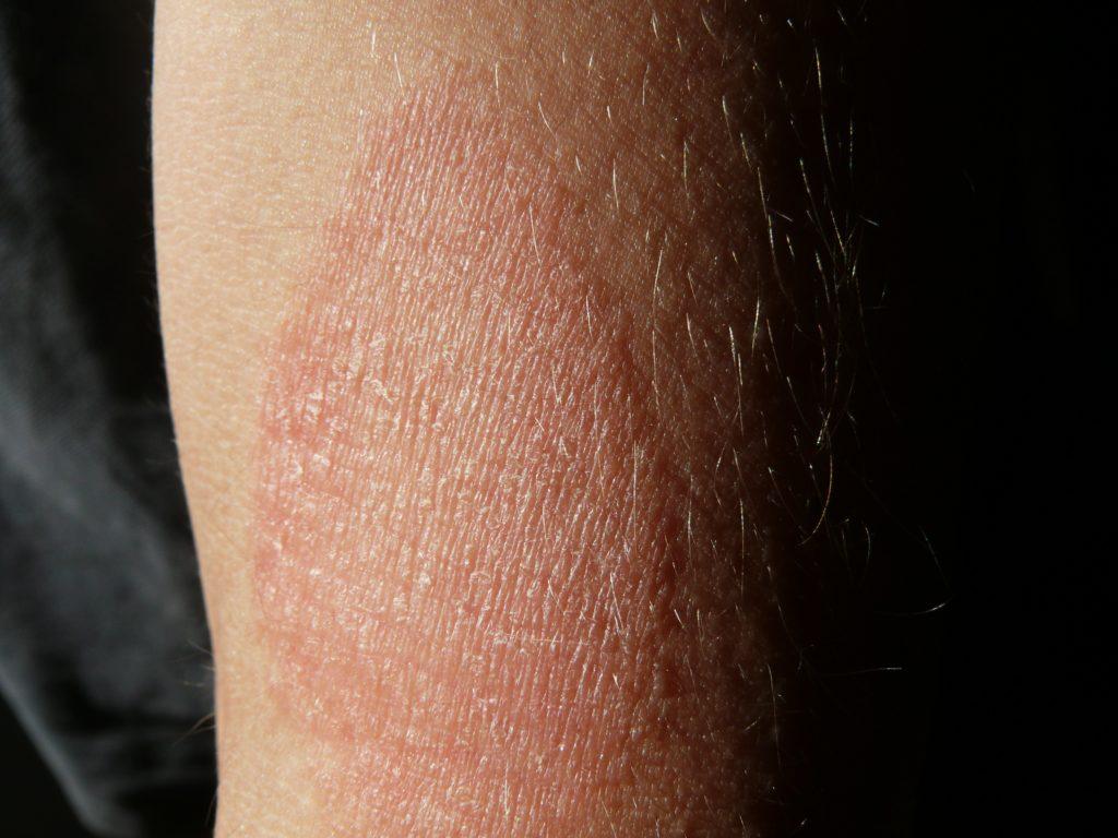 Remedios caseros para el eczema