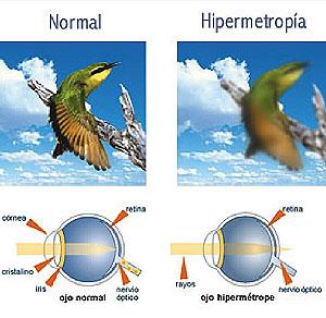 qué es hipermetropia